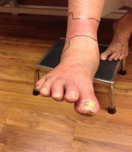 Non-healing leg or ankle wounds I Venous Leg Ulcers - South