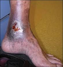 Non-healing leg or ankle wounds I Venous Leg Ulcers - South Bay