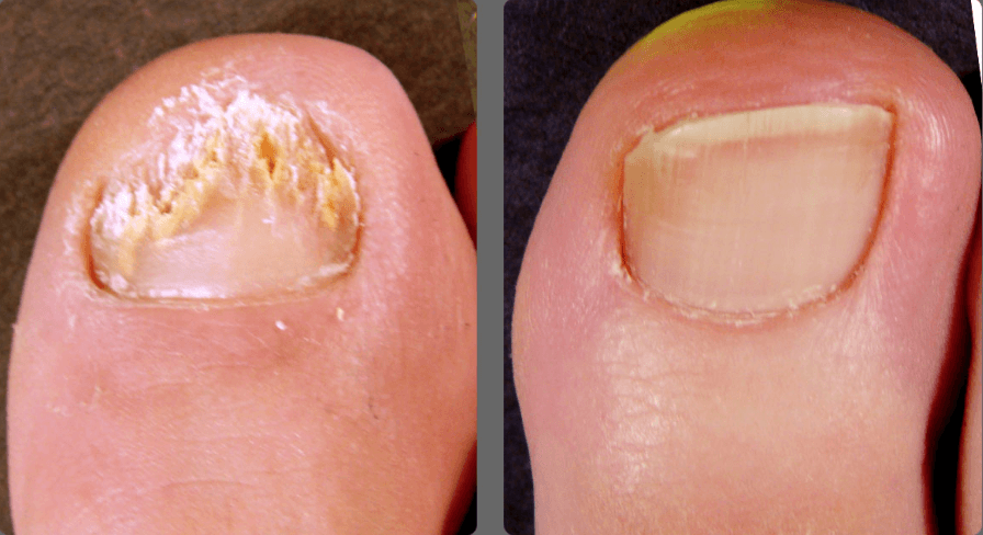 Nail Fungus Removal Services - Bare Medical Spa + Laser Center