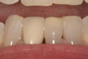 Post Care Treatment I Oral Aftercare I Instructions - Smilin Dental