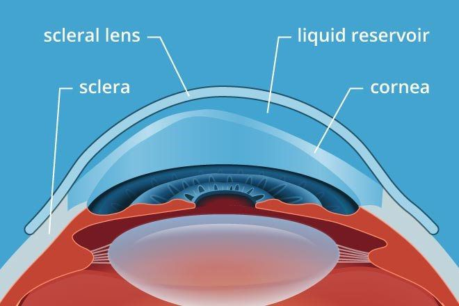 Scleral Contact Lenses - Marc Thall Optometry I Mission Hills & Granada Hills, CA
