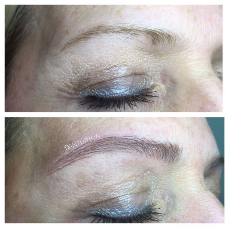 Eyebrow Microblading Services Skintuition Rochester