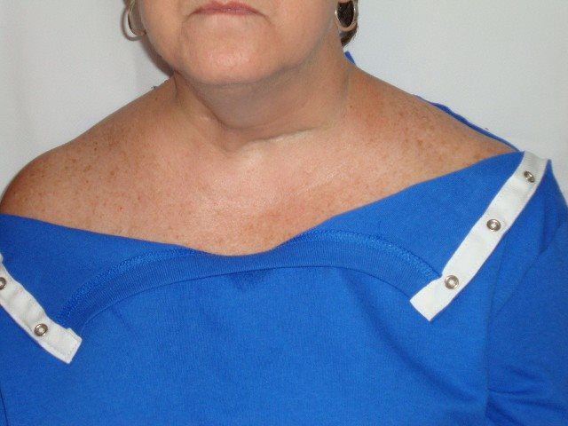 STYLE #1D: Patient wear hidden snaps after hospital gown, cardiovascular surgery