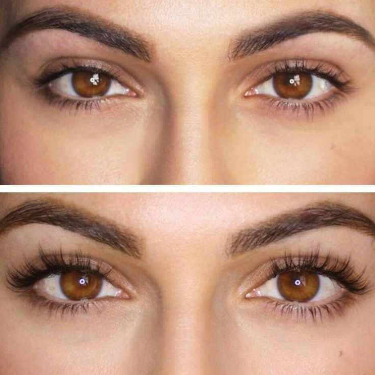 Lashes Brows Extensions Bare Medical Spa Laser Center