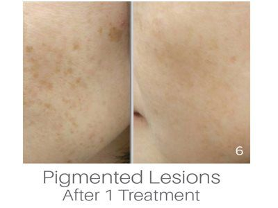 PiQo4 for Pigment IPL Photo Facial - Atlanta Dermatology And Laser