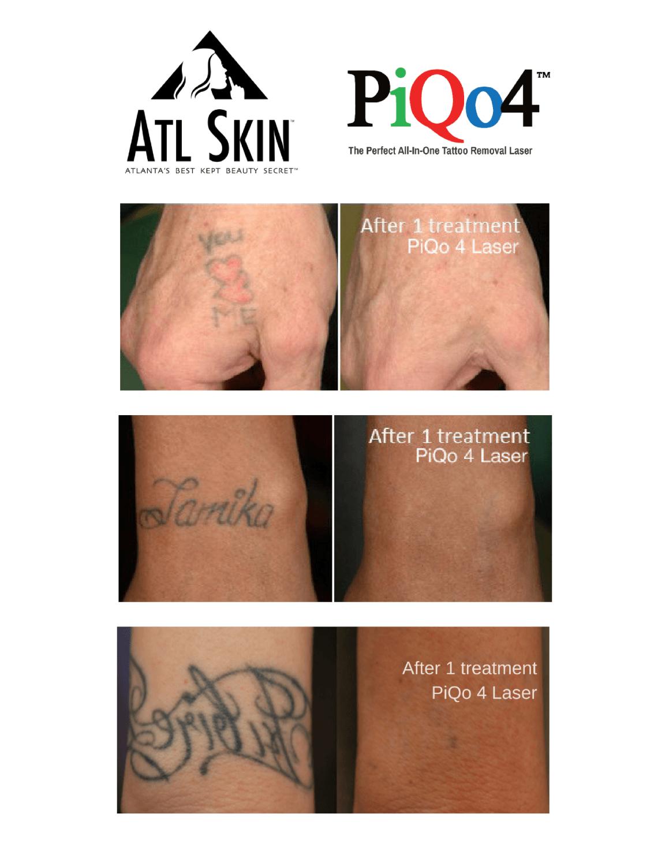PiQo4 Laser Tattoo Removal - Atlanta Dermatology And Laser Surgery