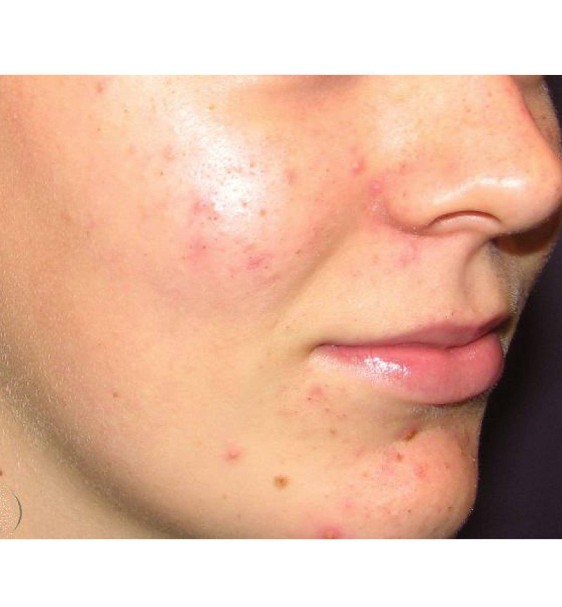 acne vulgaris dermnet nz - HD1920×1588