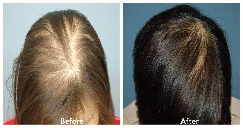 Плазмолифтинг головы для волос цена