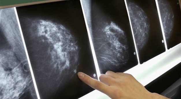breast-cancer-171-e1422137457819.jpg