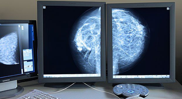 early-breast-cancer.jpg