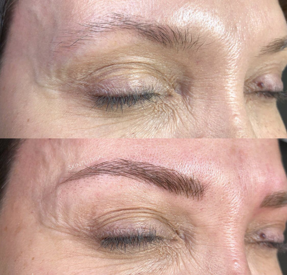 Brows Menu Skintuition Rochester