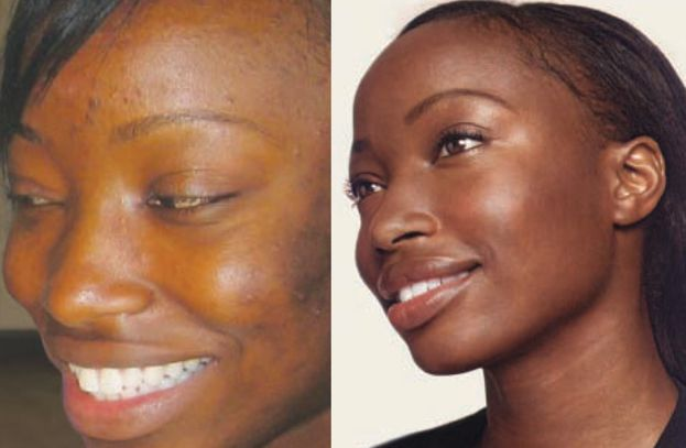 Skin Bleaching Spa In Houston