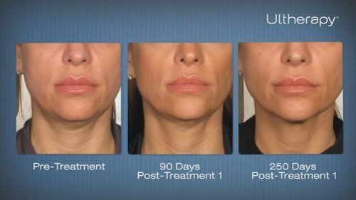Ultherapy Equipment Texas Laser Source